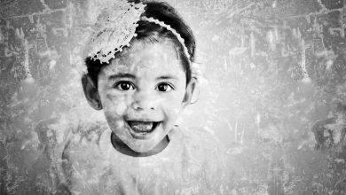 Foto de Exposição retrata crianças afetadas pelo vírus da Zika