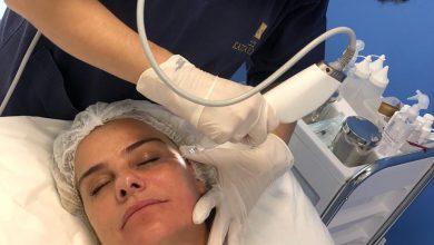 Foto de Apaixonada Milene Domingues cuida da beleza em clinica de estética em SP
