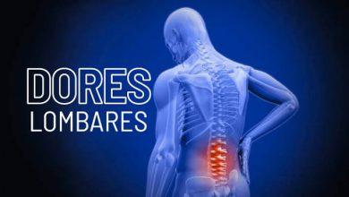 Foto de Os benefícios da fisioterapia e pilates nos tratamentos das dores lombares
