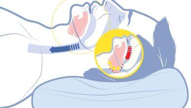 Foto de Os efeitos da Pandemia pode agravar doenças do sono